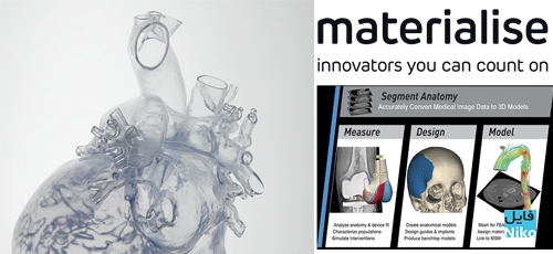 Materialise Mimics - دانلود Materialise Mimics Innovation Suite Medical / Research v21.0 مجموعه نرم افزار مهندسی آناتومی بدن انسان